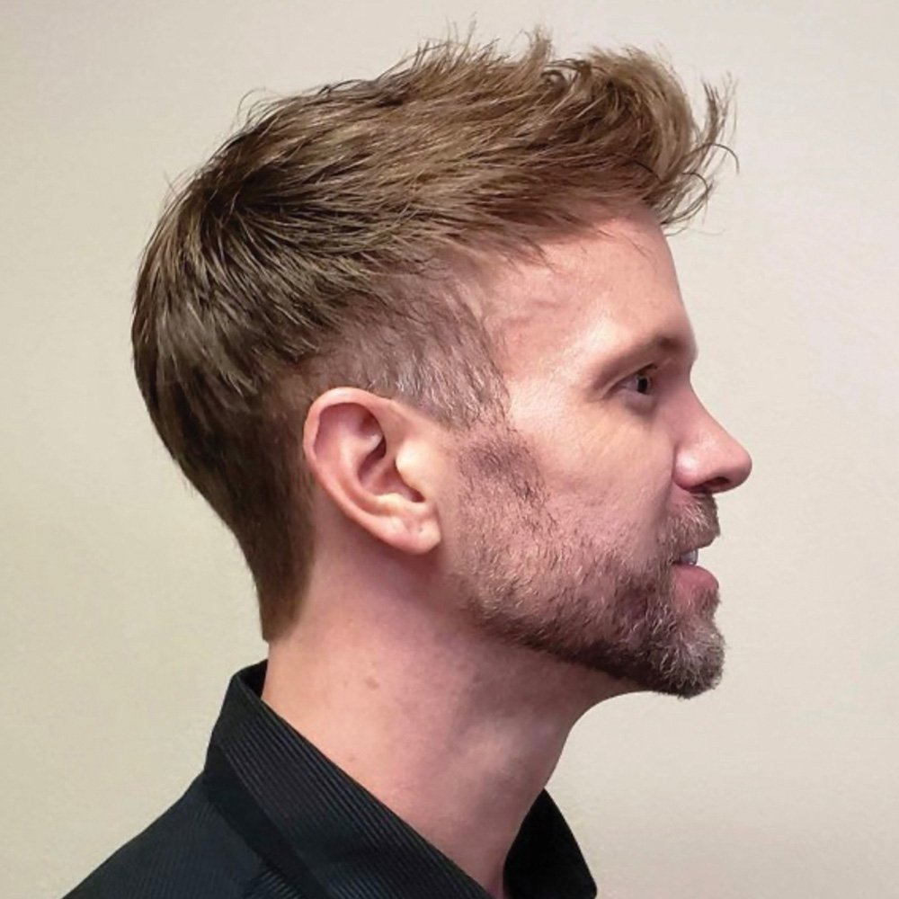 mens hair replacement after